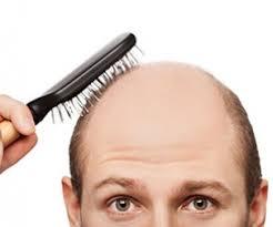محصولات ضد ریزش مو دکتر نوروزیان