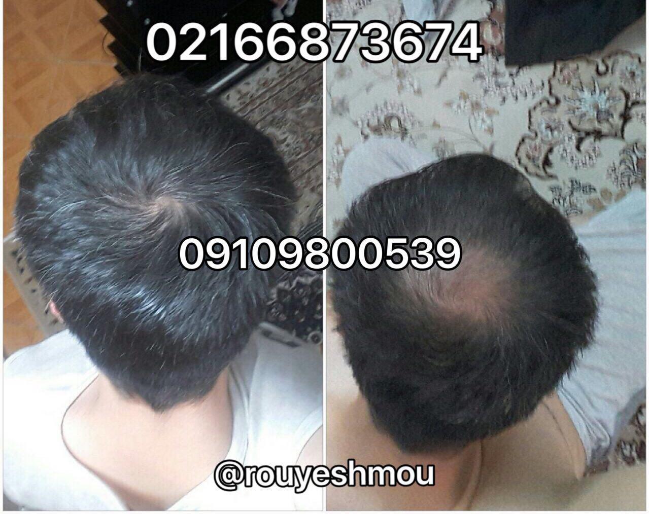 بهترین قرص رشد سریع موی سر