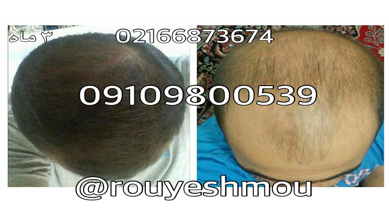 روش های افزایش رشد مو