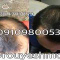 تقویت مو با موثر ترین روش ها