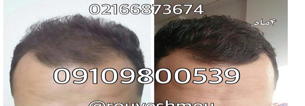 پایانی بر ریزش مو