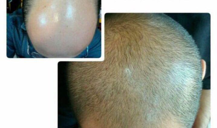 روش استفاده از آب پیاز برای تقویت مو
