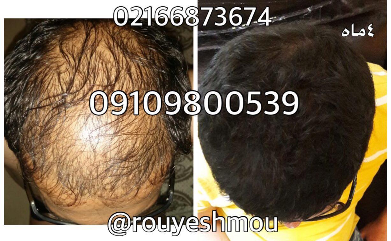 معجزه سیر برای رشد مو