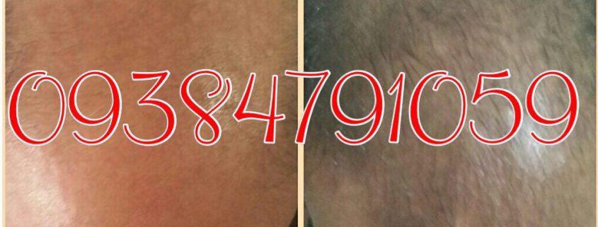 رشد مجدد مو با محلول دکتر نوروزیان ممکن شد