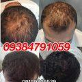 درمان ریزش مو با پکیج دکتر نوروزیان