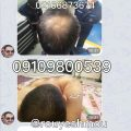 کاهش روند ریزش مو با دکتر نوروزیان