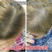 رشدسریع موها با محلول های دکتر نوروزیان