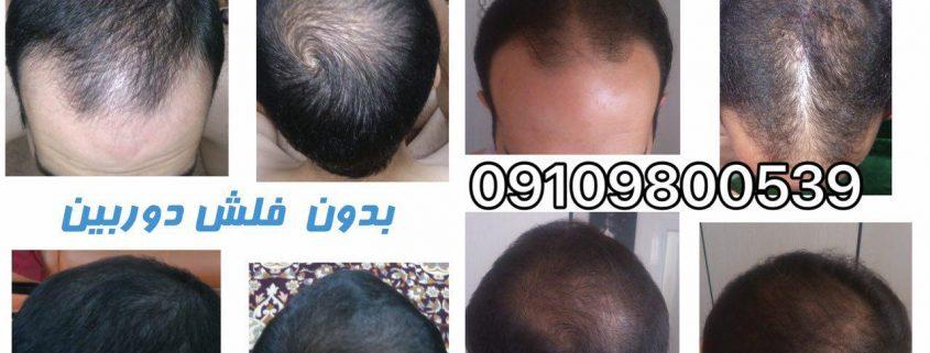 درمان قطعی ریزش مو با لاناریا