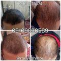 رشدوتقویت مو با محلول دکتر نوروزیان