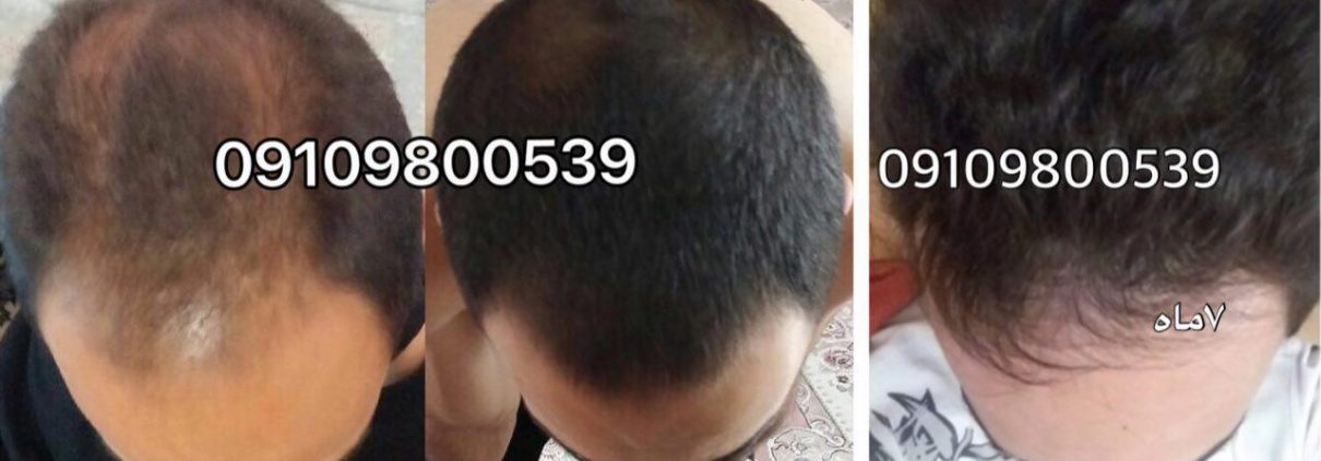 چرا کودکانتان ریزش مو دارند؟