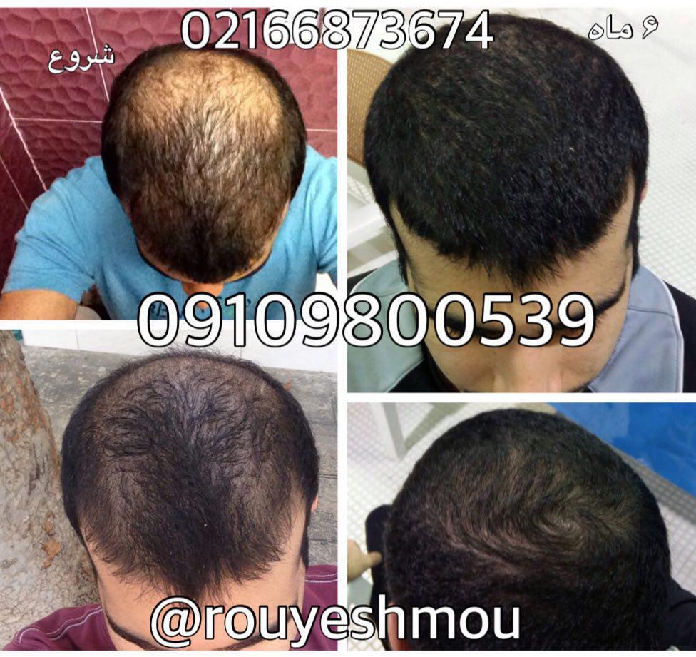 درباره رشد سریع مو بیشتر بدانید