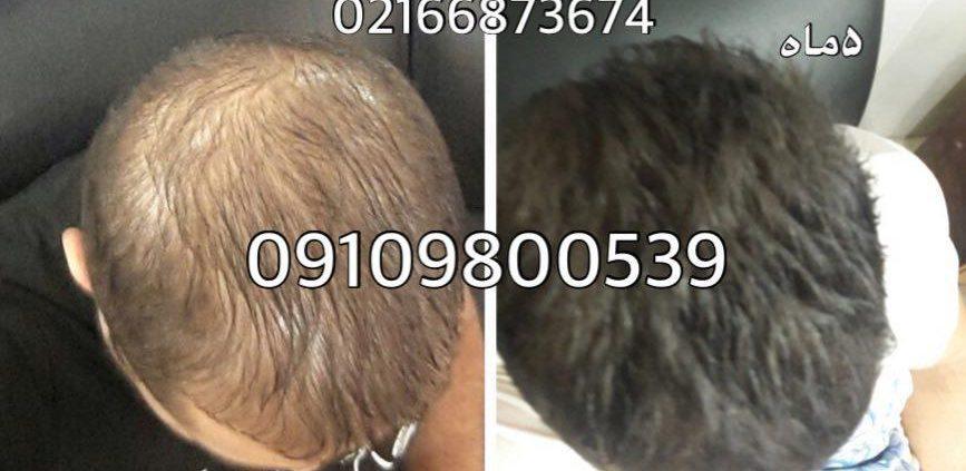 تاثیر شگفت انگیز تخم مرغ و ماسک آن بر رشد موی سر