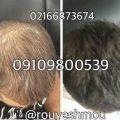 دانستنی هایی در مورد رشد مو