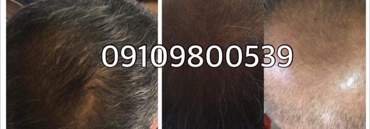 معجزه ی ویتامین ب را در رشد موهایتان ببینید
