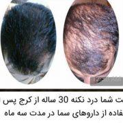 آیا وقت آن رسیده درباره ریزش مو در مردان بیشتر بدانید؟