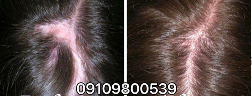 راهکارهای جلوگیری از ریزش مو در دوران شیردهی