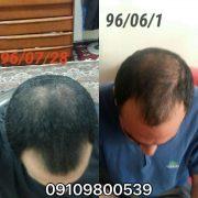 رشد موهای خود را به روش هندی بالا ببرید