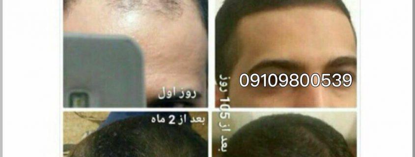 معرفی انواع قرص جهت تقویت رشد موی سر