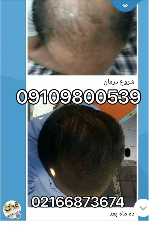 ترکیبی طبیعی جهت رشد سریع مو
