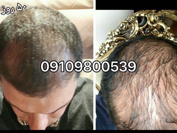 از صفر تا صد مو را بشناسید