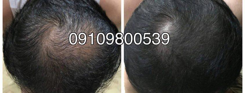 درباره رشد مو و ریزش مو بیشتر بدانید