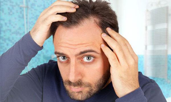 مردان درباره ریزش مو بدانند