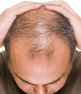 در خانه ریزش موی خود را درمان کنید