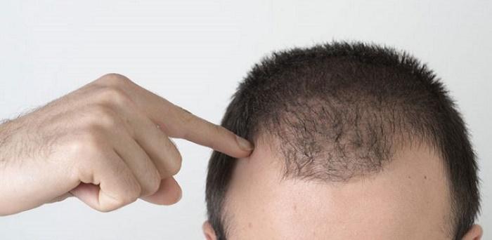 علت ریزش مو در مردان جوان چیست