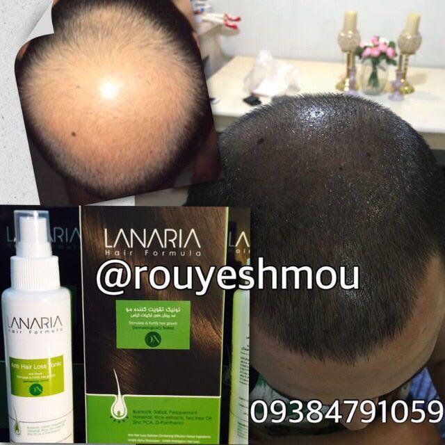 روش های موثر در افزایش رشد مو