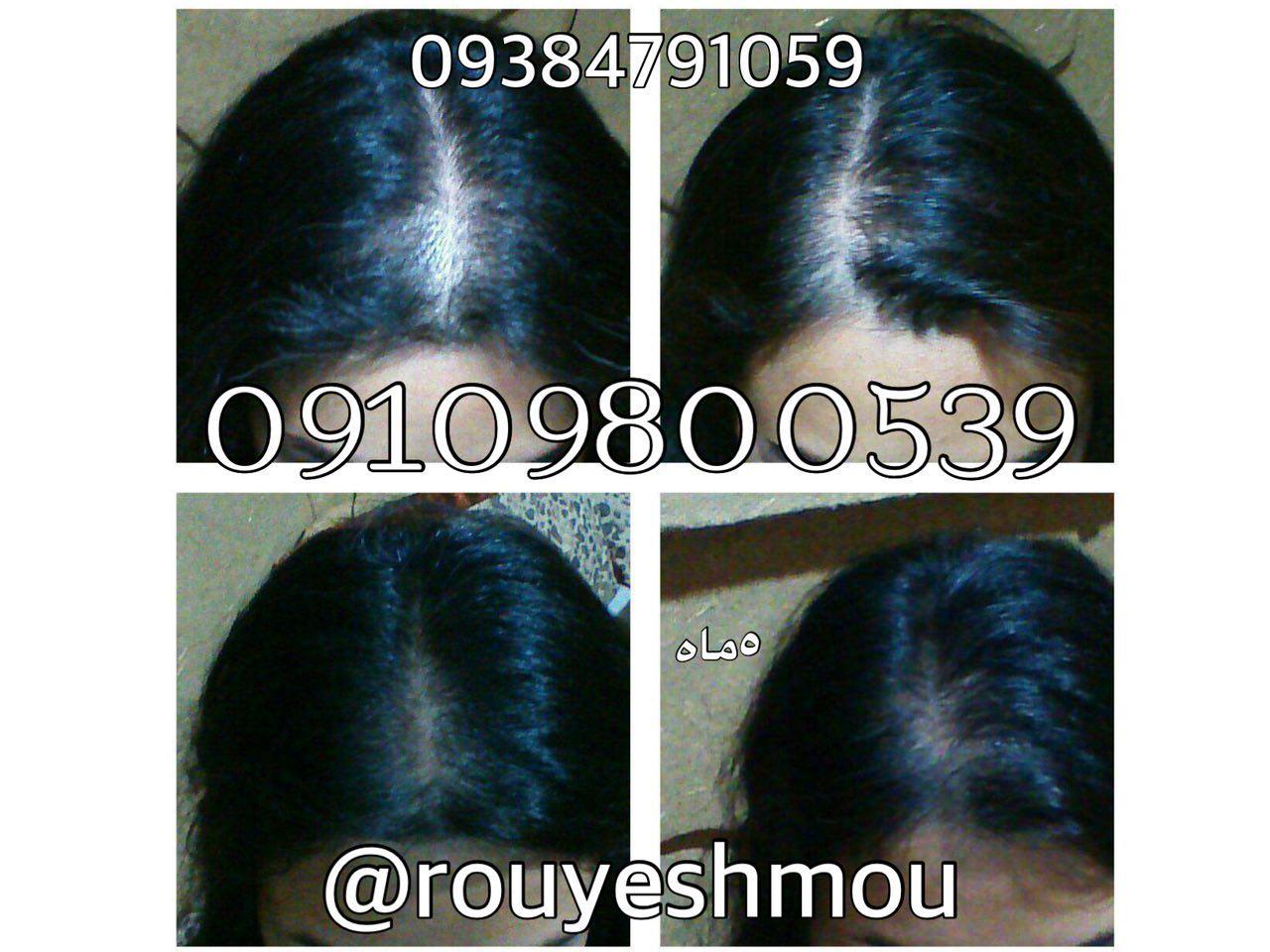 رشد سریع مو با روغن زیتون