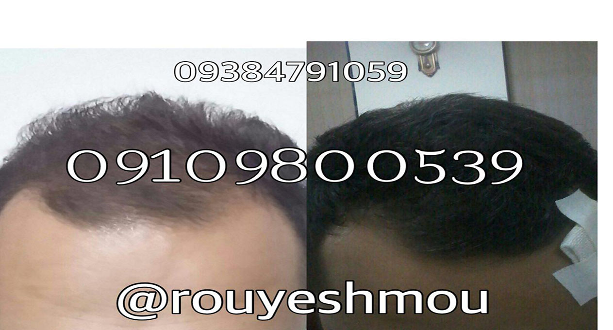 راههای کم هزینه و موثر برای درمان ریزش مو
