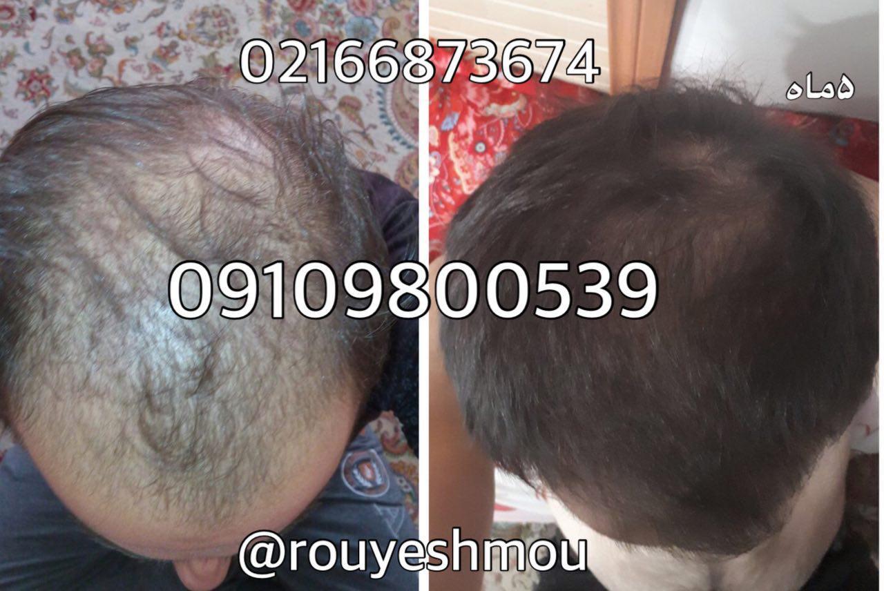 افزایش رشد موی سر با آب برنج