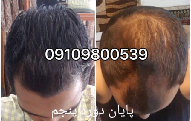 محلول دکتر نوروزیان برای جلوگیری از ریزش مو