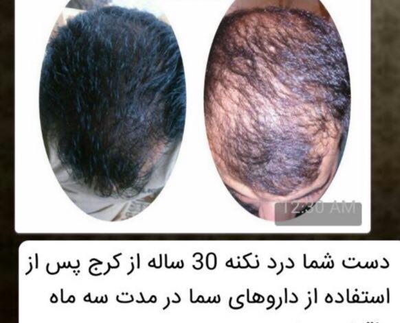 از موهای خود مراقبت کنید