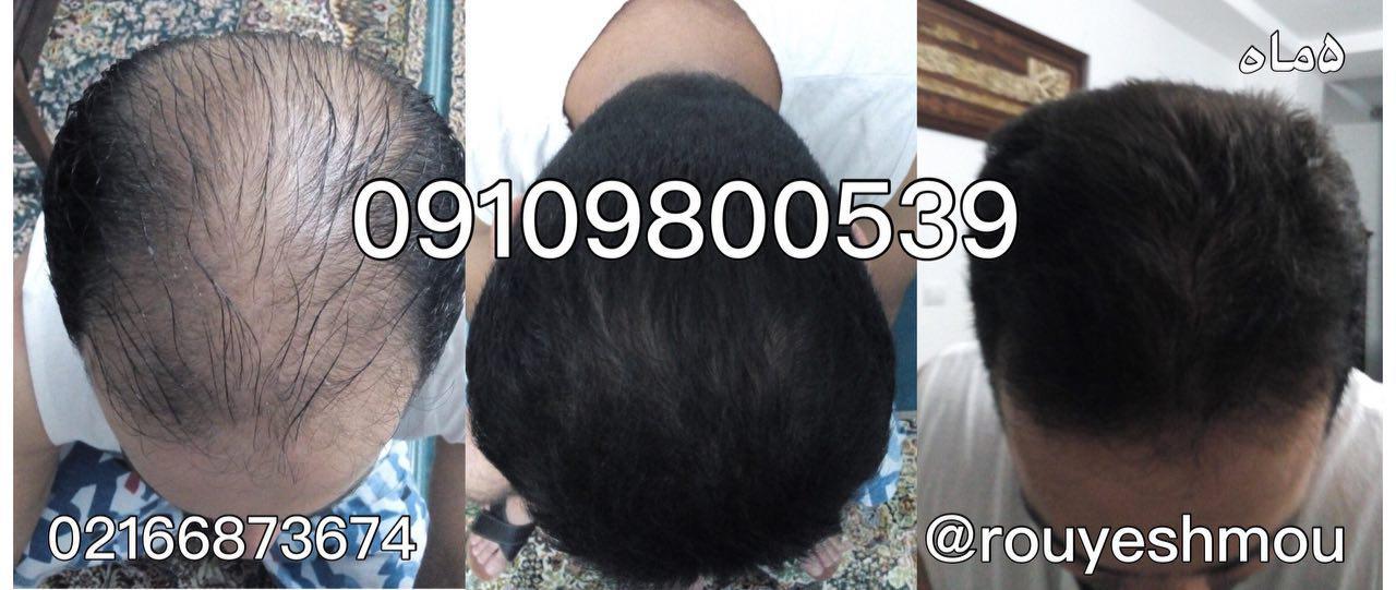 رشد موهایتان را تقویت کنید