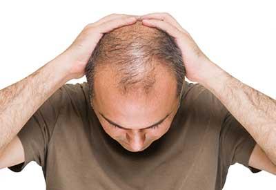 مواد غذایی که به رویش مجدد مو کمک میکنند