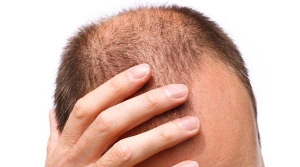 می توان ریزش موی ارثی را کنترل کرد