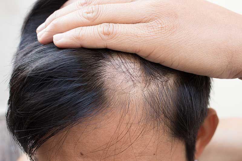 راههای کنار آمدن با ریزش موها